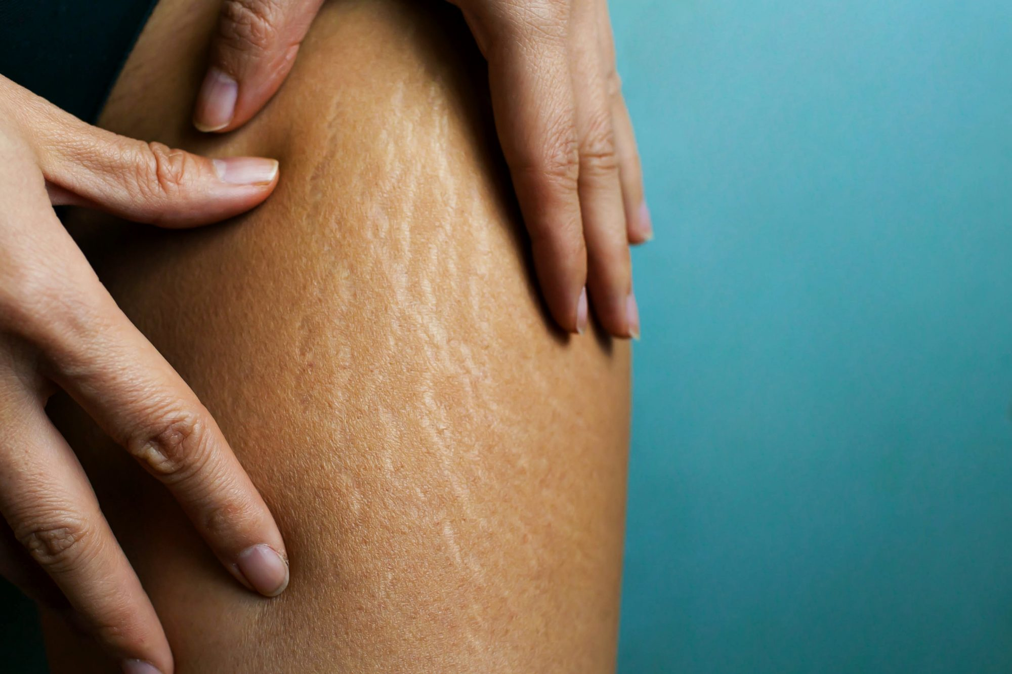 Why weight loss causes stretch marks